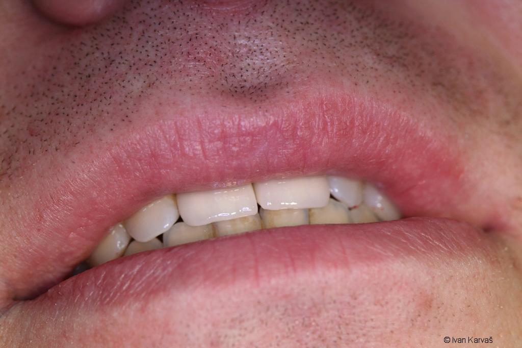 Nahradené predné zuby