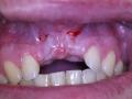 Zuby po extrakcii