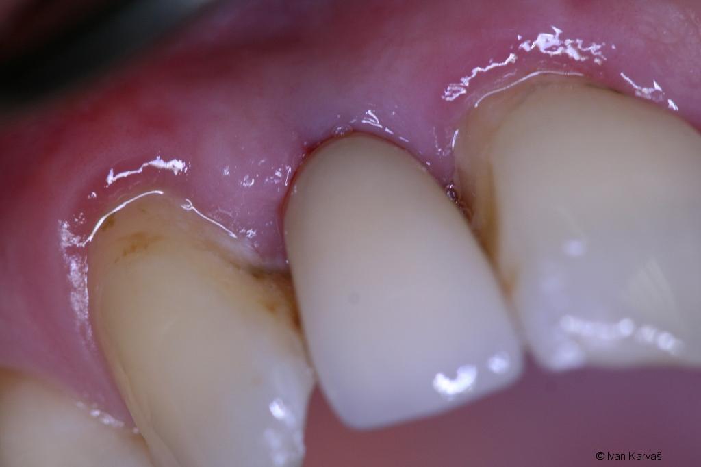 Po nasadení náhradného zuba