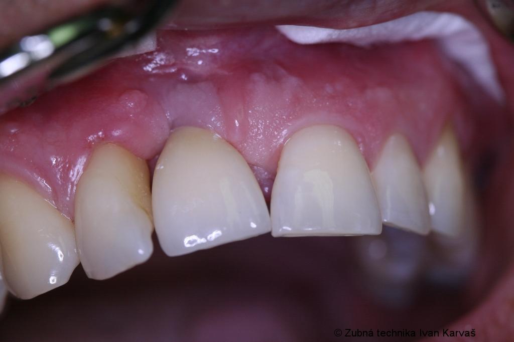 Zubná náhrada
